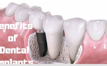Benifits Of Dental Implants