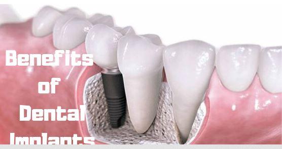 Benifits Of Dental Implants