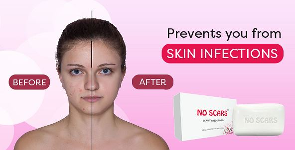 Ensure you are in possession of acne and a spotless skin