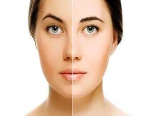 Skin Whitening Methods
