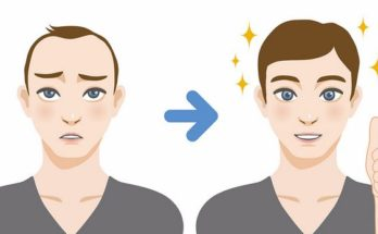 What to expect from hair transplantation treatments