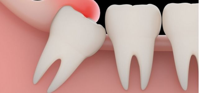 6 Things to Know About Wisdom Tooth Extraction