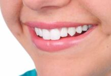 5 Benefits of Straight Teeth Everyone Needs to Experience