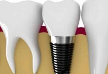 Dental Implants for Teenagers
