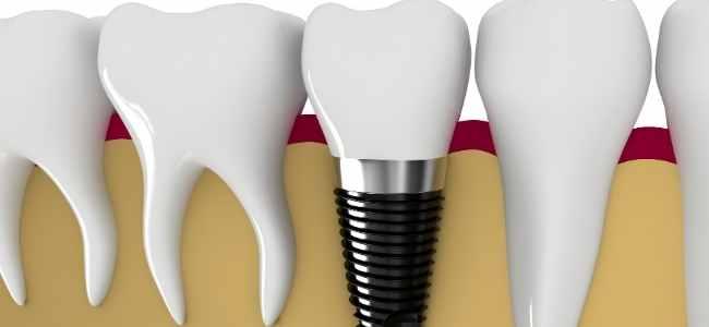Dental Implants for Teenagers