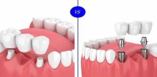 Is Getting a Dental Implant Better Than Getting a Dental Bridge