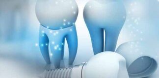 What Are All on 4 Dental Implants